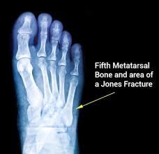 Deebo Samuel Suffers Broken Foot